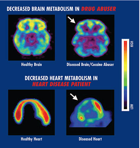 Brain_and_heart_metabolism_Drugs