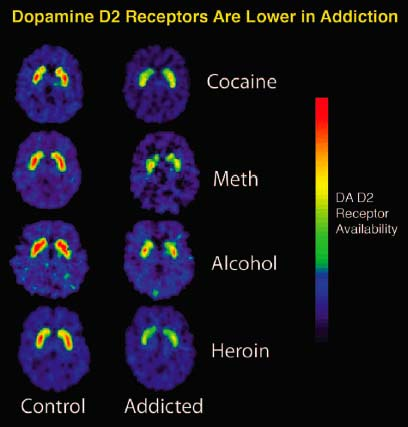Dopamine_D2_Receptors_in_Addiction